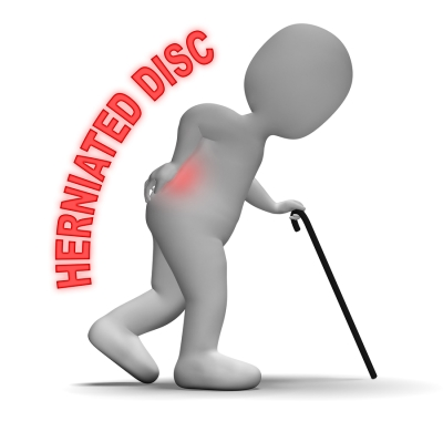 herniated - disc